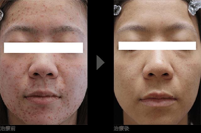 額(おでこ)、こめかみ、頬、顎(あご)、顎裏にかけての  ニキビ治療 20代半ば 女性