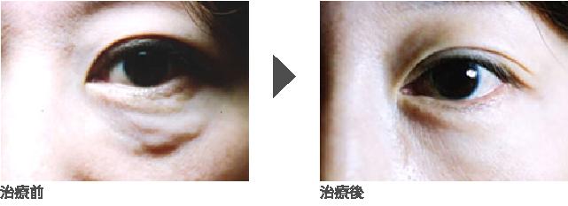 目の下のヒアルロン酸分解治療  女性