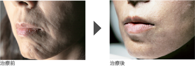 あごの凹凸(うめぼしじわ)改善