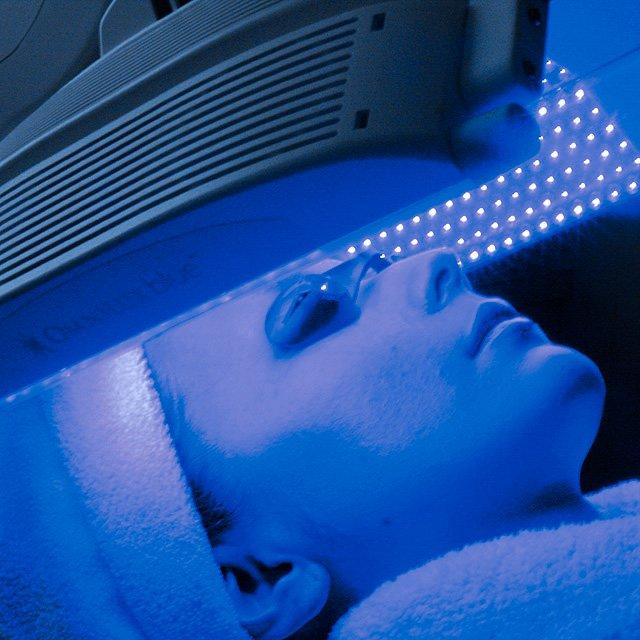 LED治療(青色・415nm)